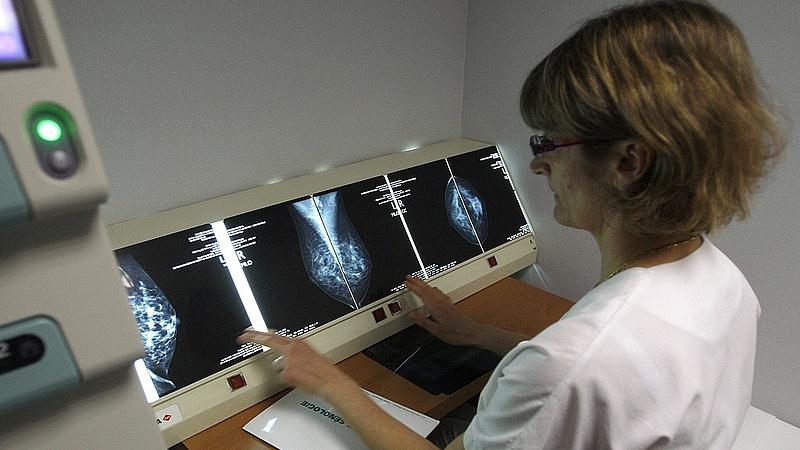 Új rendszer jön az Onkológiai Intézetben