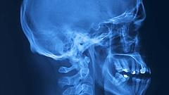 Hatástalanok a Péterfyben használt sugárvédő eszközök, veszélyben a betegek és az orvosok