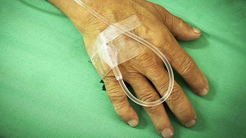 Fordulat a magyar kórházakban - nem tartalékolnak