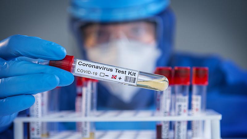 Koronavírus: az induló szűrés részleteiről és az őszi második hullámról is beszélt Merkely