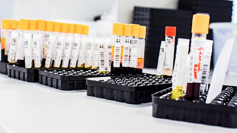 Koronavírus: továbbra is nagyon magas a pozitív tesztek aránya Csehországban