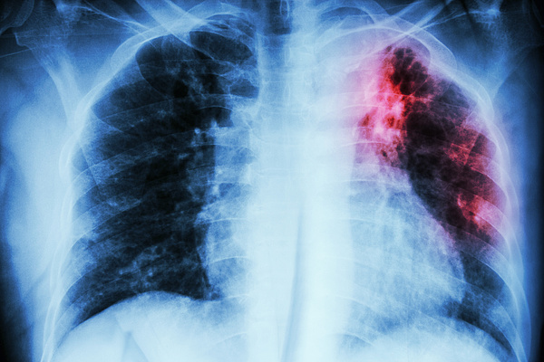 Már az infarktus előtt jönnek a tünetek, figyelni kell rájuk!