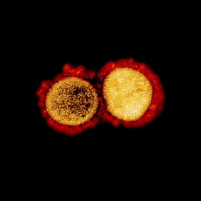 Koronavírus: lassult a járvány a szomszédban is