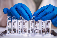Koronavírus: Szlovákiában is kimutatták a delta variáns jelenlétét