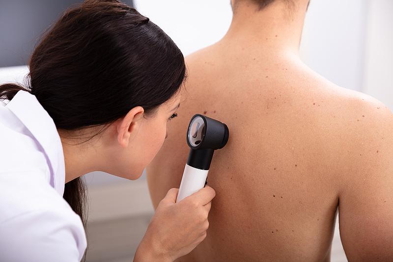 Új szűrési eljárás mentheti meg a bőrrákosokat